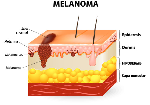 melanoma esquema